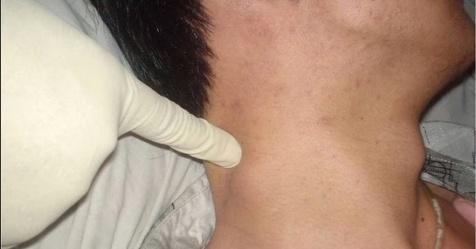 Pengobatan Kelenjar Getah Bening Di Belakang Leher