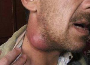 Biaya Operasi Kelenjar Getah Bening Di Leher